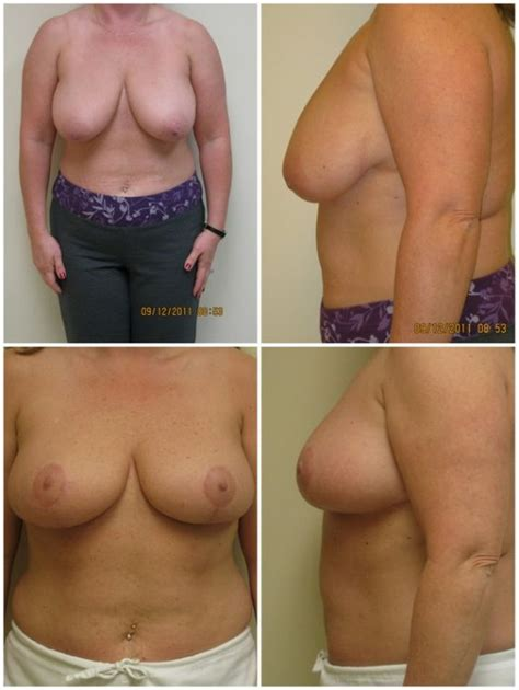 moderate ptosis with breast augmentation photos jpg 570x758